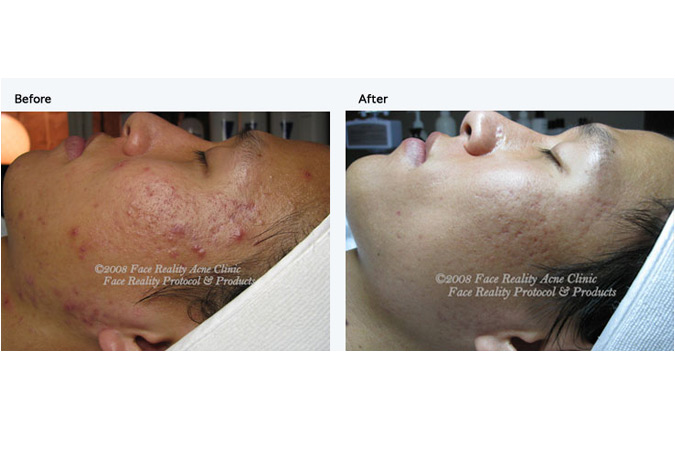Skin Rejuve by Tiffany - Advanced skin care and Acne Clinic